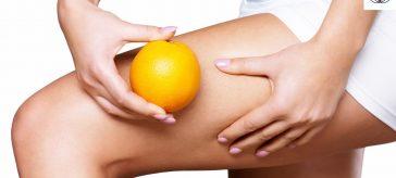La cellulite: l'incubo di tante donne